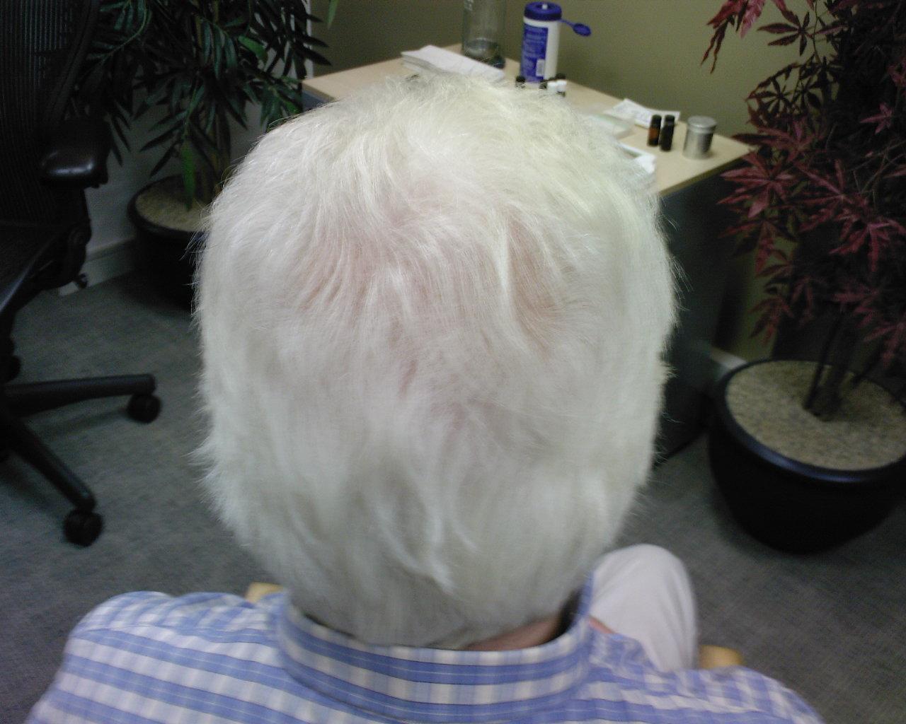 Седые волосы у детей фото