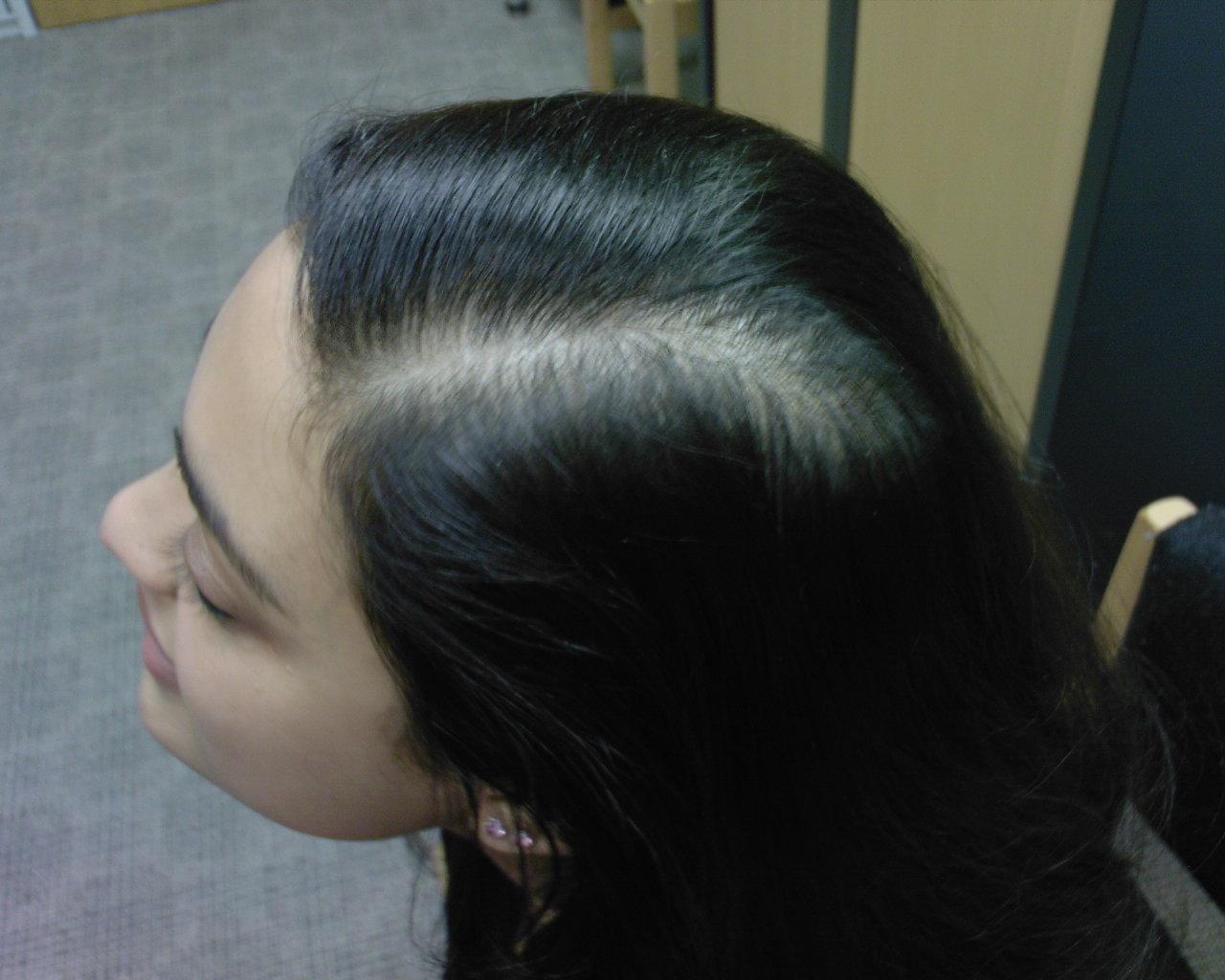 the hair centre   female hair loss