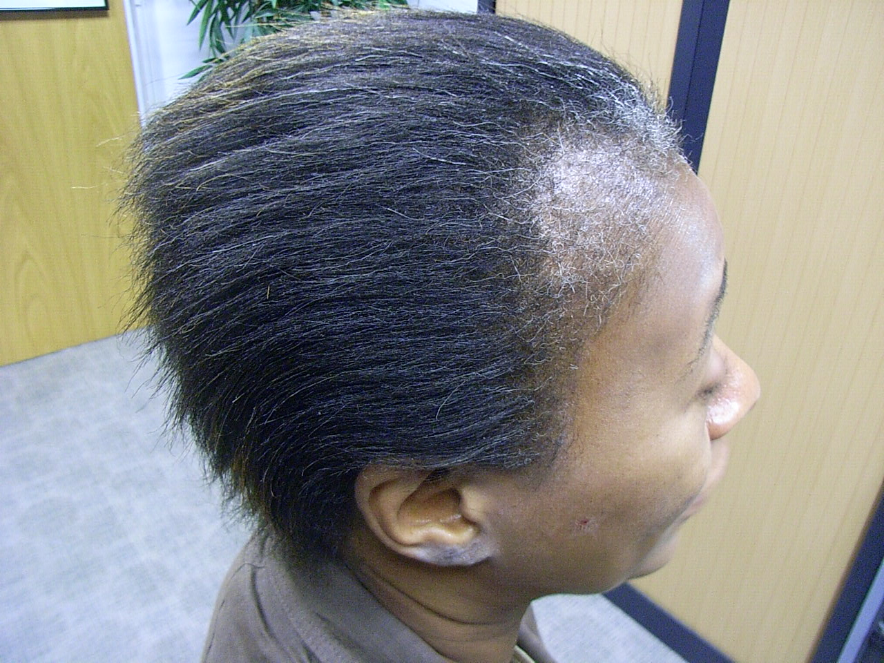 BLACK AFRO-CARIBBEAN HAIR LOSS