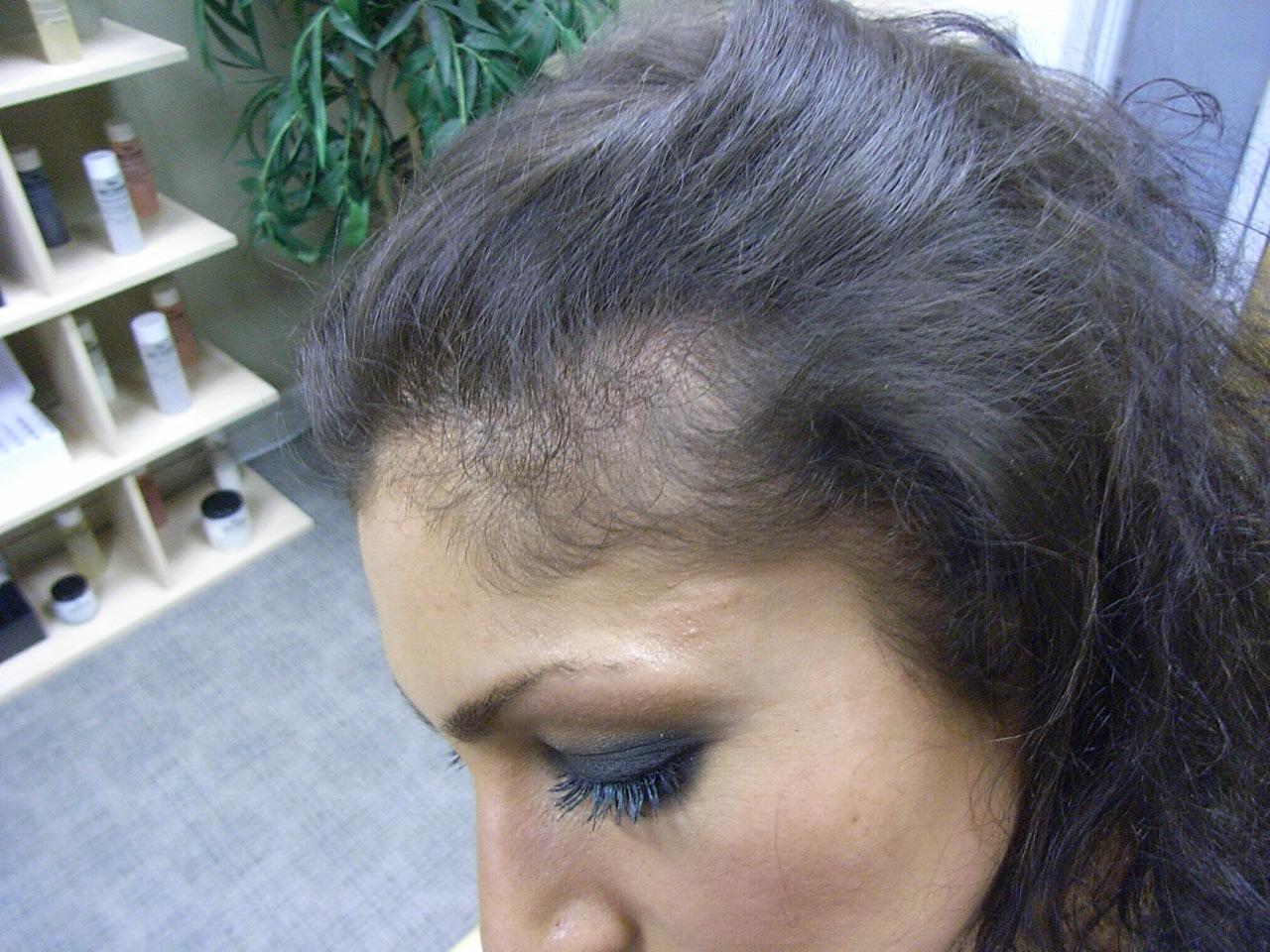 the hair centre | female hair loss
