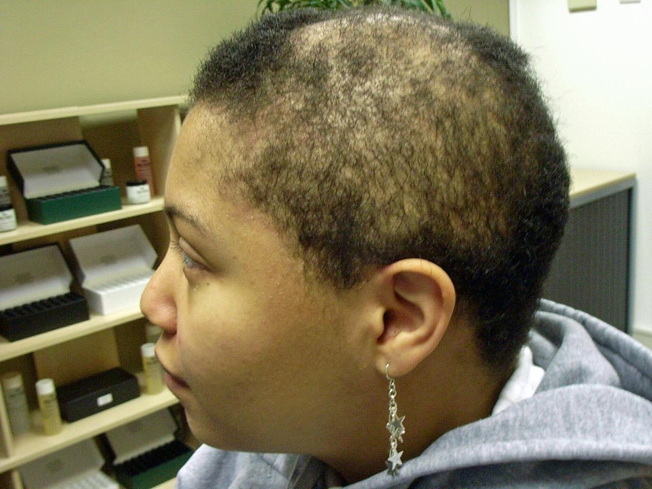 the hair centre | black afro-caribbean hair loss