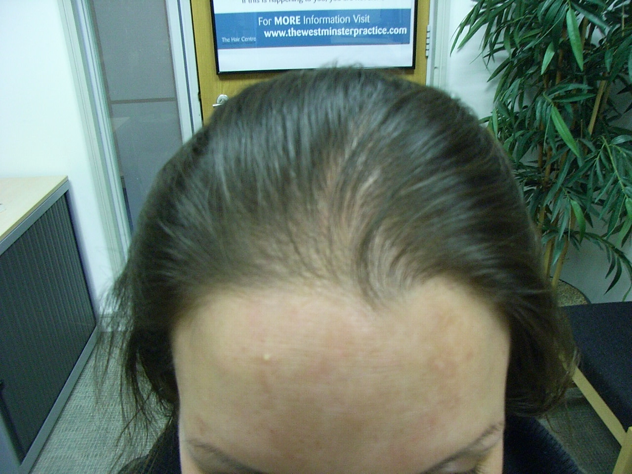 the hair centre | female hair loss: results within 4 months
