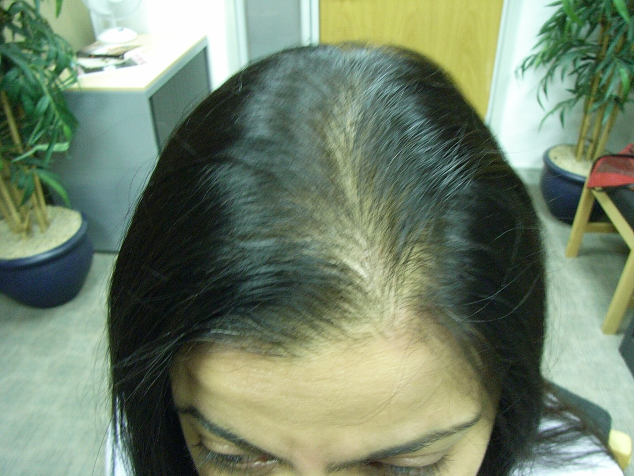 Hair loss asian women