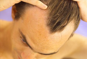 phototake_rm_photo_of_male_hair_loss