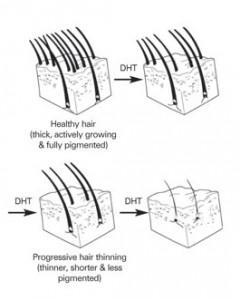 hair-chart