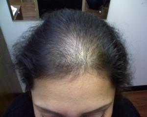 female-hair-loss1