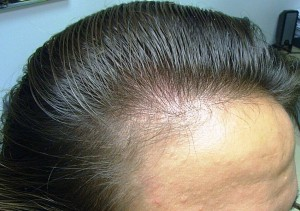 Females Rarely Have As Sever Hair Loss That Of Males Young Women Much Higher Levels Cytochrome P 450 Aromatase In Frontal Follicles Than Men